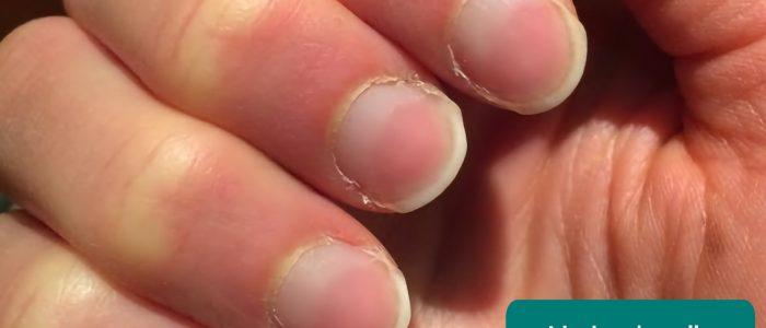 Lindsay's nails