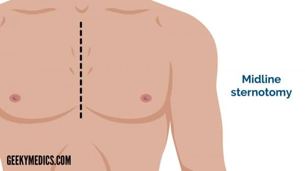 Midline sternotomy incision - cardiothoracic incisions