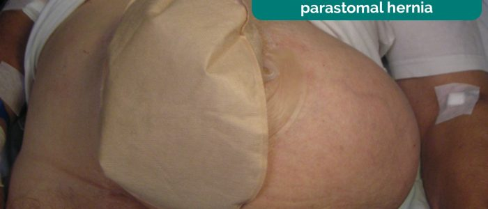 Colostomy with an associated parastomal hernia