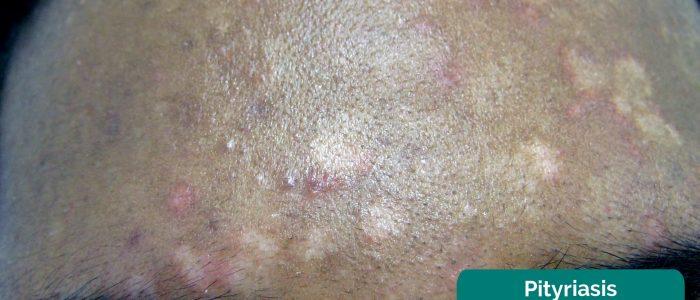 Pityriasis versicolour
