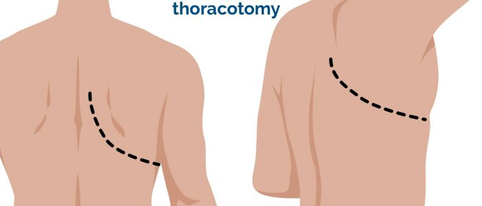 Posterolateral thoracotomy incision