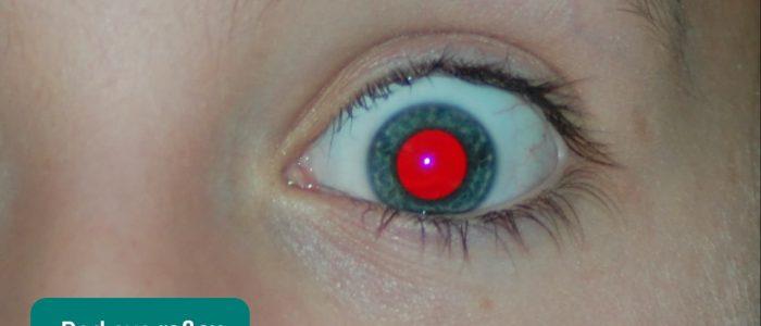 Red eye reflex