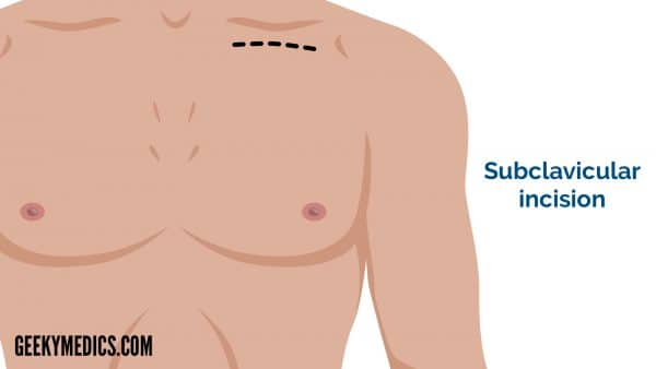 Subclavicular incision - cardiothoracic incisions