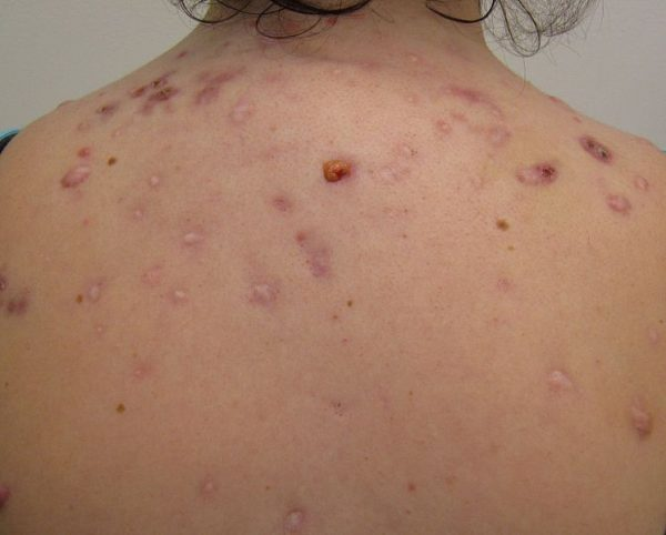 Severe upper back acne in a Caucasian woman, showing papules, pustules, and post-inflammatory scarring