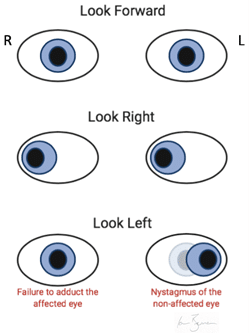 Clinical appearance of intranuclear ophthalmoplegia affecting the right eye.