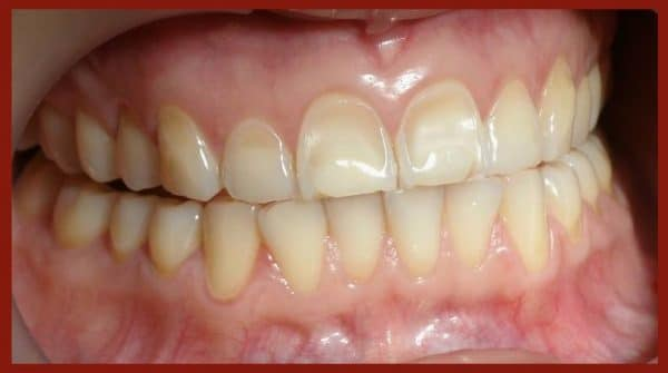 Erosion: smooth surfaces with preserved enamel 'halo' at gingival margin.