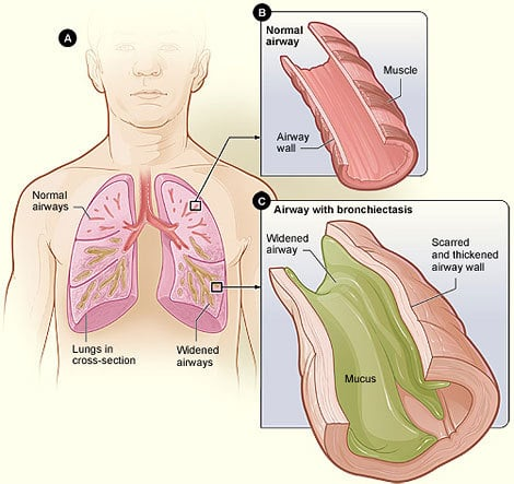 Bronchiectasis diagram