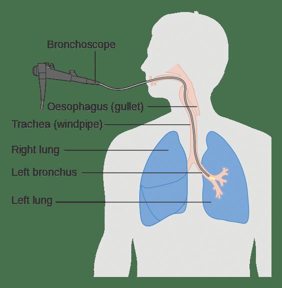 Bronchoscopy diagram