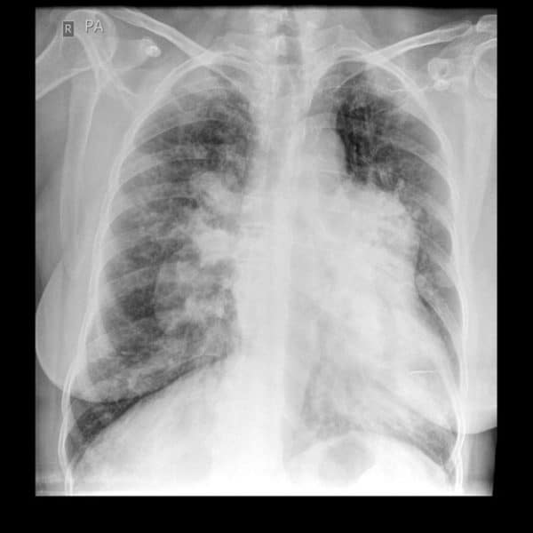 Pulmonary Hypertension X-ray