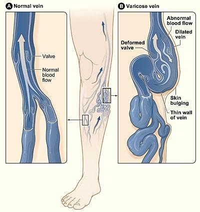 A diagram of varicose veins
