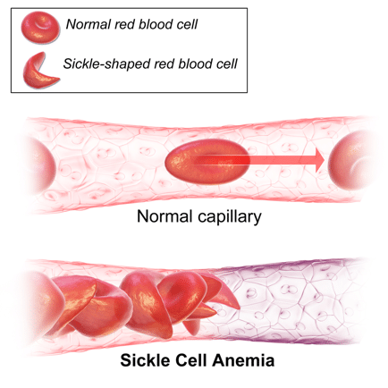 sickle cell blood