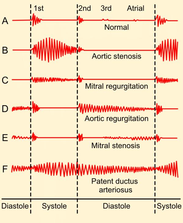 Heart mumur phonogram