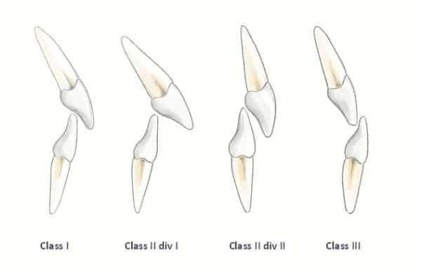 British standards institute incisor classification