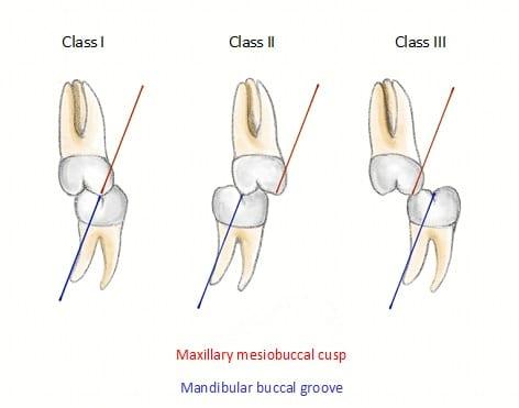 Angles molar classification