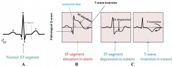NSTEMI ECG Features