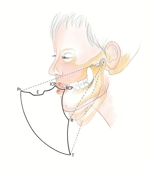Envelope of function dental occlusion