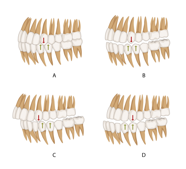 Canine classification occlusion
