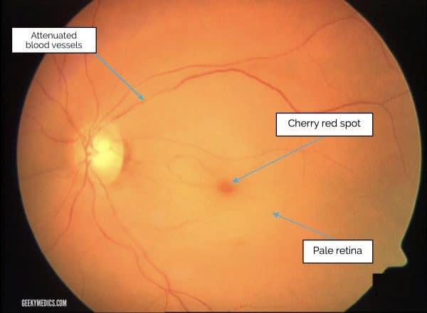 central retinal artery occlusion on fundoscopy