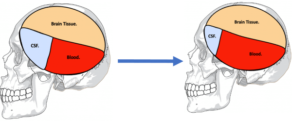 A diagram illustrating the process of compliance to maintain intracranial pressure