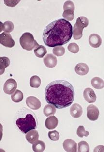 Acute Myeloid Leukaemia.  Two myeloblasts with single, prominent Auer rods