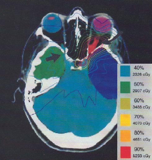 radiotherapy planning