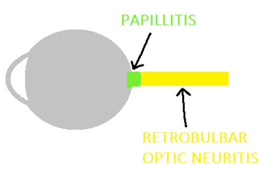 A sagittal illustration of the globe and optic nerve