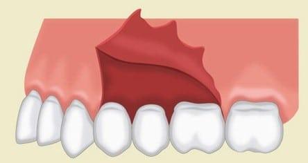 Triangular flap dental
