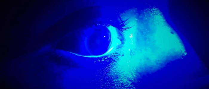 Inspect the surface of the eye using the blue cobalt light