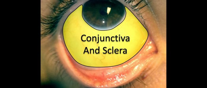 Inspect the conjunctiva and sclera