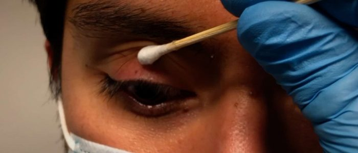 Place a cotton bud on the upper eyelid