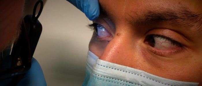 Ask the patient to look outwards
