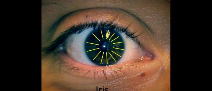 Inspect the iris