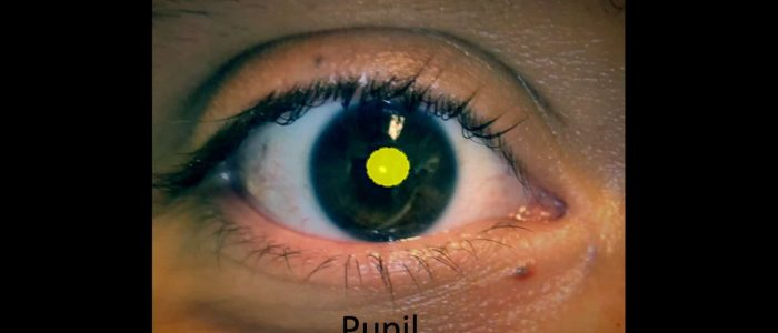Inspect the pupil