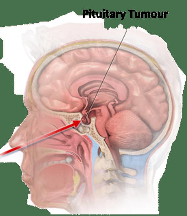 Transsphenoidal approach