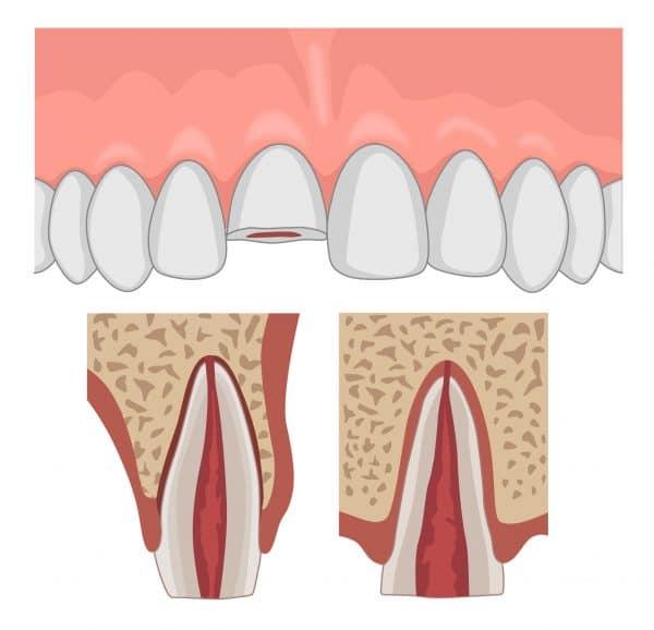 Enamel-Dentine-Pulp (EDP) fracture