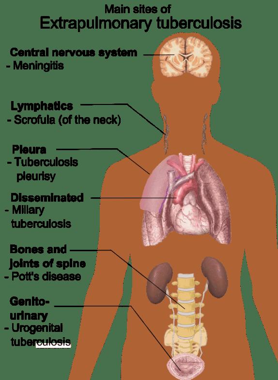 The extra-pulmonary manifestations of tuberculosis