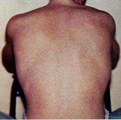 Maculopapular rash of dengue fever