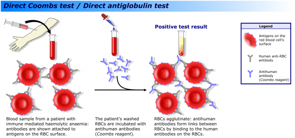 A direct Coombs test can be used to determine if a haemolytic anaemia has an immune cause