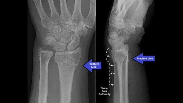 PA and lateral view of Colles fracture, dinner fork deformity