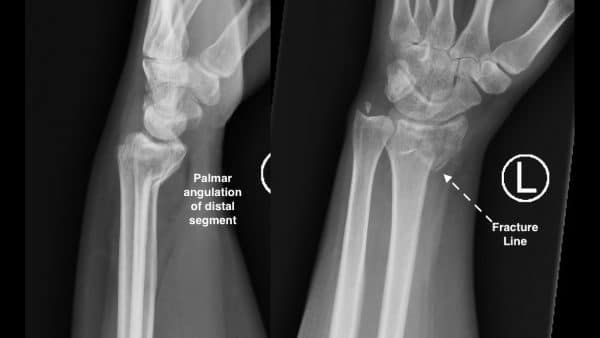 Lateral and PA view of type 1 Smith fracture
