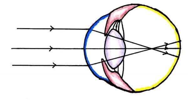 Figure 2:  Uncorrected myopia – Light converges too anteriorly