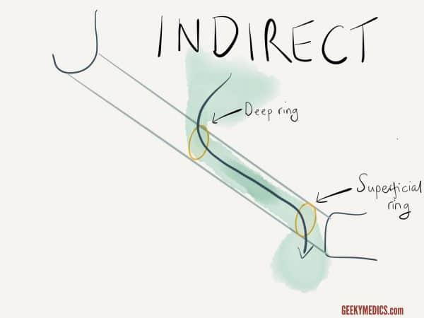 Indirect inguinal hernia